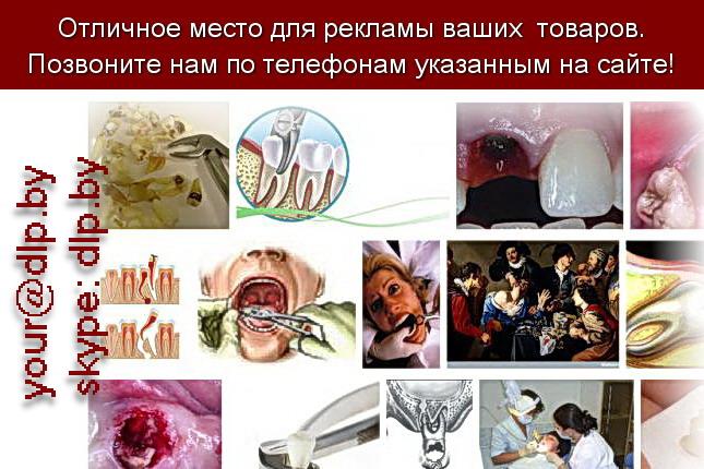 Запрос: «удаление зуба», рубрика: Медицина